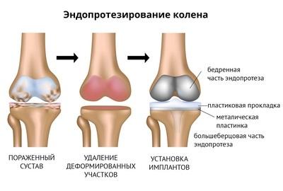 endoprotezirovanie-osteoartroz1