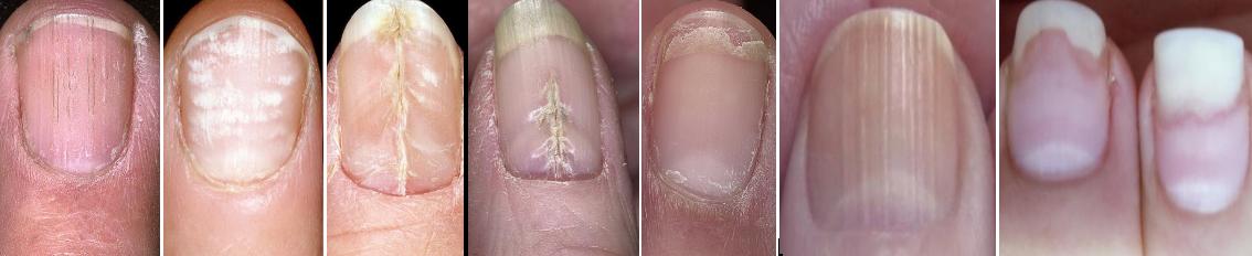 заболевание ногтей